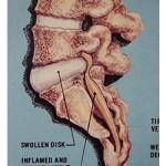 Phase 1 vertebra chart