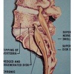 Diagram - Phase 2 degeneration of spine