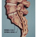 normal vertebrae diagram
