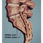 normal vertebrae chart