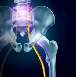 sciatica-back-pain