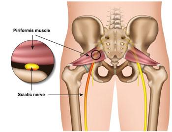 leg-pain-sciatica