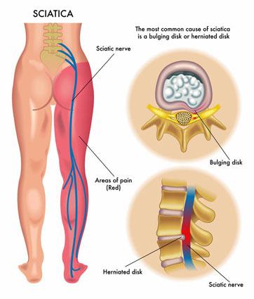 sciatica-leg-pain