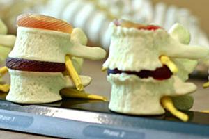 model of vertebrae